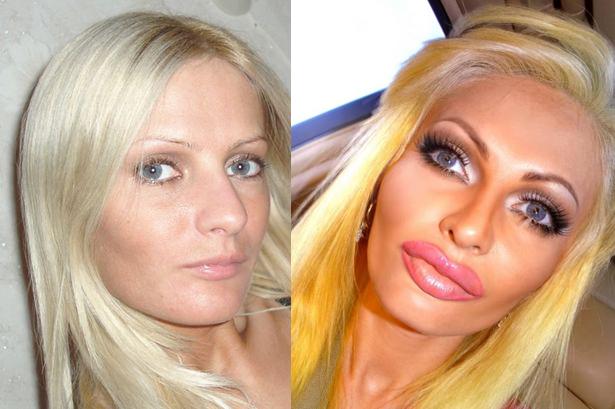 PAY-plastic-surgery-2