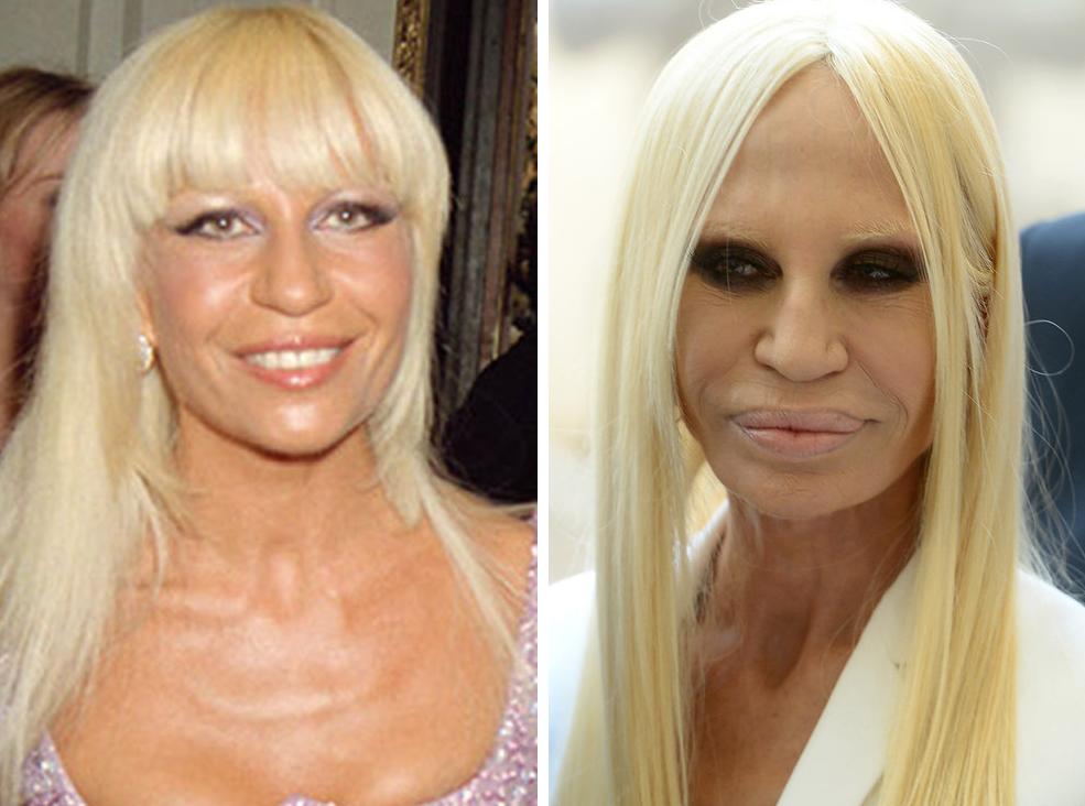 Versace surgery