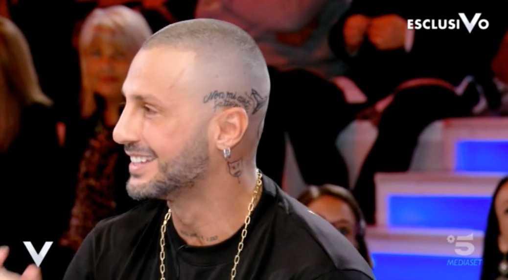 Fabrizio Corona dente caduto 3